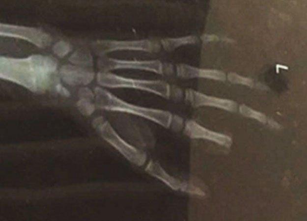 Китайский школьник отрезал себе палец в споре о видеоиграх - Изображение 1